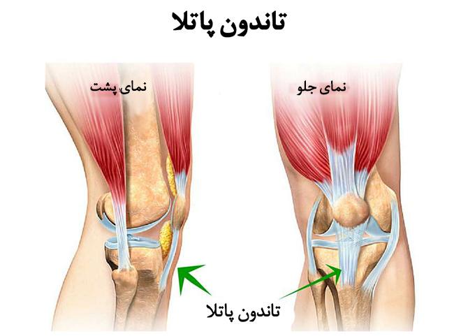 پارگی و آسیب تاندون زانو : درمان بدون جراحی