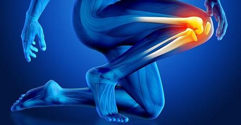 درمان پارگی منیسک زانو بدون جراحی