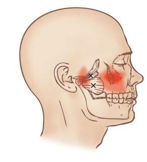 نورالژی عصب سهقلو (نورالژی تری ژمینال) چیست؟