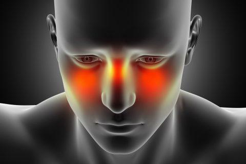 نورالژی عصب سهقلو